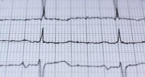 Yapay zekâ acil servis sevk ekiplerinin kalp krizini tespitine yardımcı oluyor