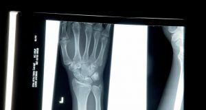 OsteoDetect yapay zekâ ile el bileğindeki kırıkların tespitine yardım edecek