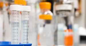 İngiltere yapay zekâ destekli kanser teşhis araştırmasına destek verecek
